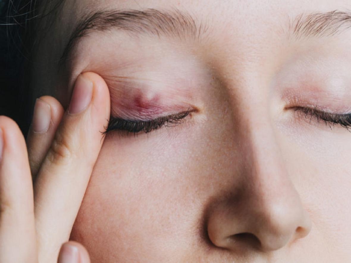 راهکارهای درمانی برای واریس صورت
