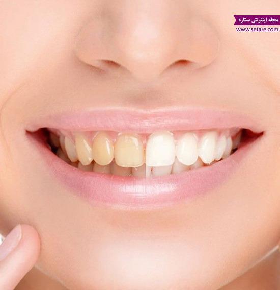 سفید کردن دندان در دو دقیقه!